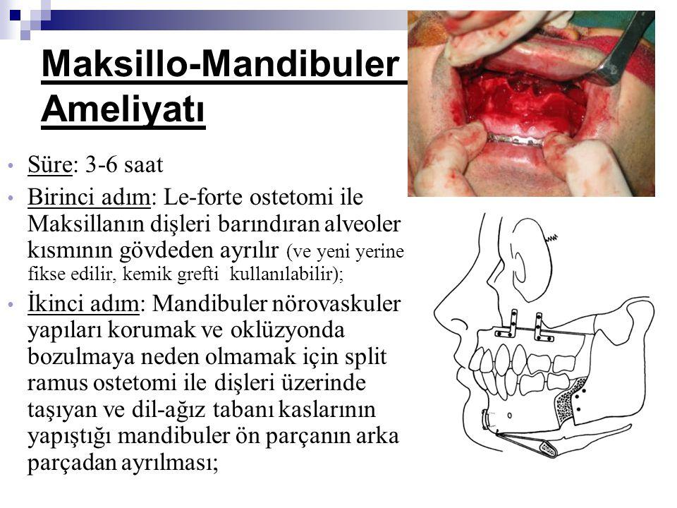 Süre: 3-6 saat Birinci adım: Le-forte ostetomi ile Maksillanın dişleri barındıran alveoler kısmının gövdeden ayrılır (ve yeni yerine fikse edilir, kem