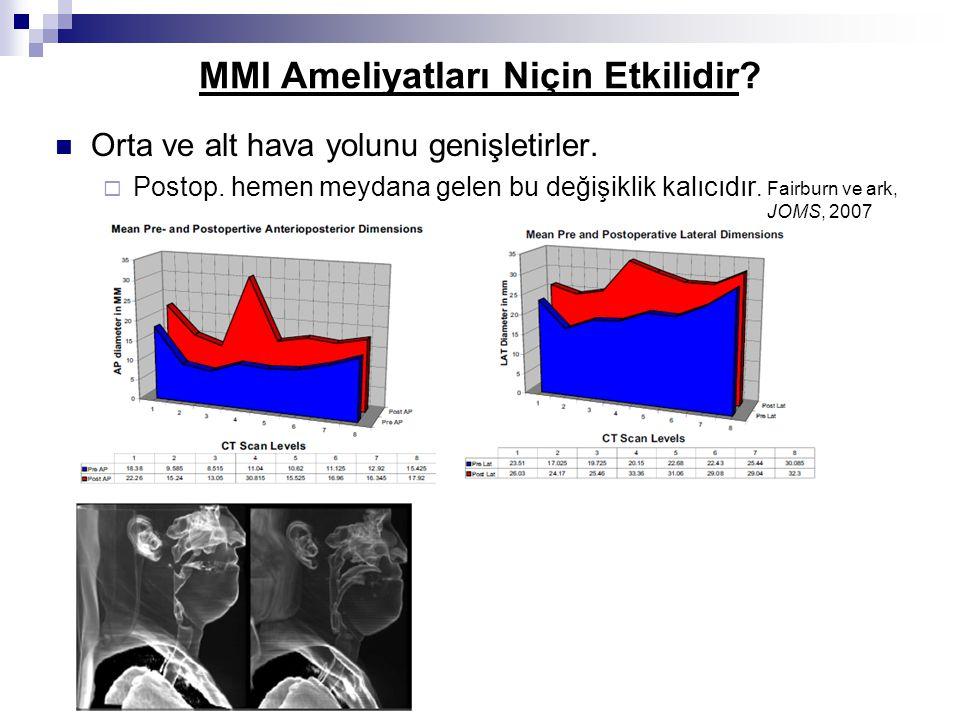 MMI Ameliyatları Niçin Etkilidir? Orta ve alt hava yolunu genişletirler.  Postop. hemen meydana gelen bu değişiklik kalıcıdır. Fairburn ve ark, JOMS,