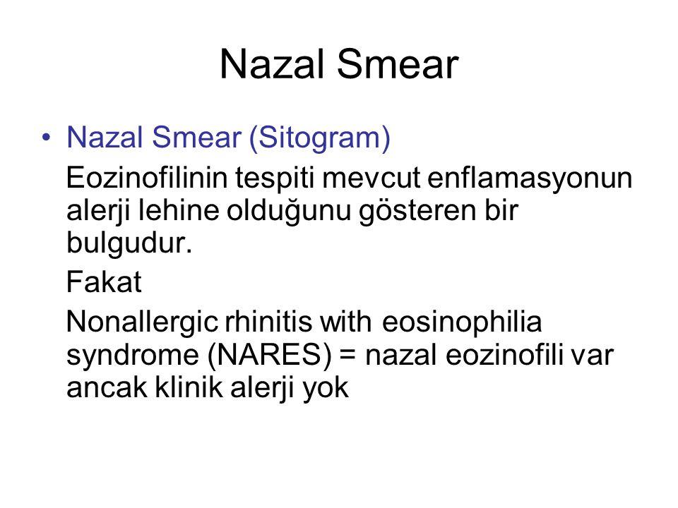 Nazal Smear Nazal Smear (Sitogram) Eozinofilinin tespiti mevcut enflamasyonun alerji lehine olduğunu gösteren bir bulgudur. Fakat Nonallergic rhinitis