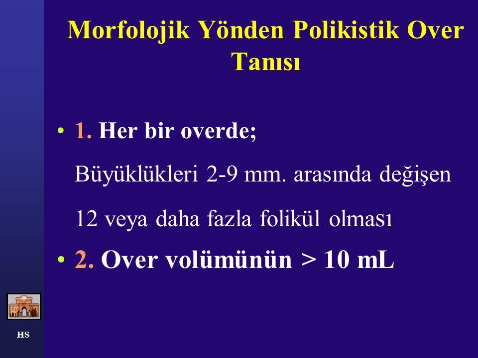HS Morfolojik Yönden Polikistik Over Tanısı 1. Her bir overde; Büyüklükleri 2-9 mm. arasında değişen 12 veya daha fazla folikül olma sı 2. Over volümü