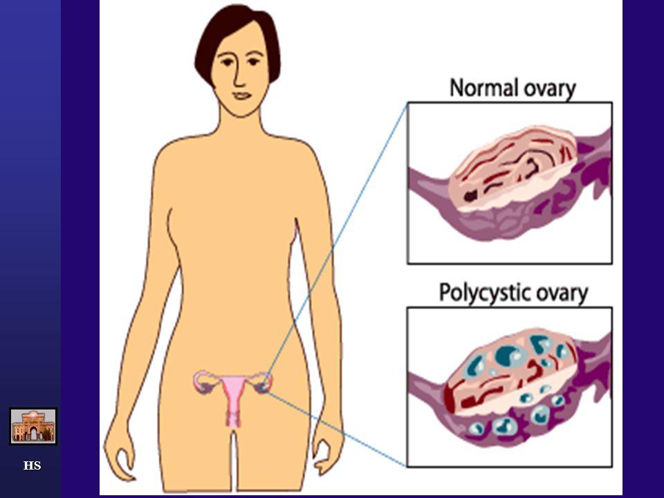 HS KİLO KAYBI PCOS'lu kadınların %24'ü normalin üstünde bir kiloya sahiptir (body mass index, 25.0 to 29.9 kg/m2).Bu oran genel populasyondaki orana benzerdir ;bu hastalardaki obesite ( body mass index>=30.0 kg/m2) oranı ise %42 dir.