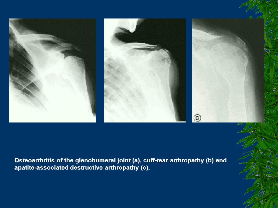 Osteoarthritis of the glenohumeral joint (a), cuff-tear arthropathy (b) and apatite-associated destructive arthropathy (c).
