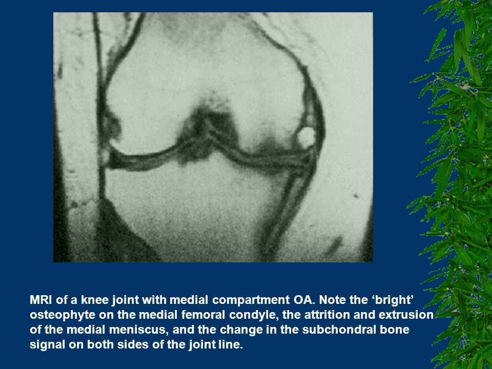 MRI of the knee joint in OA.