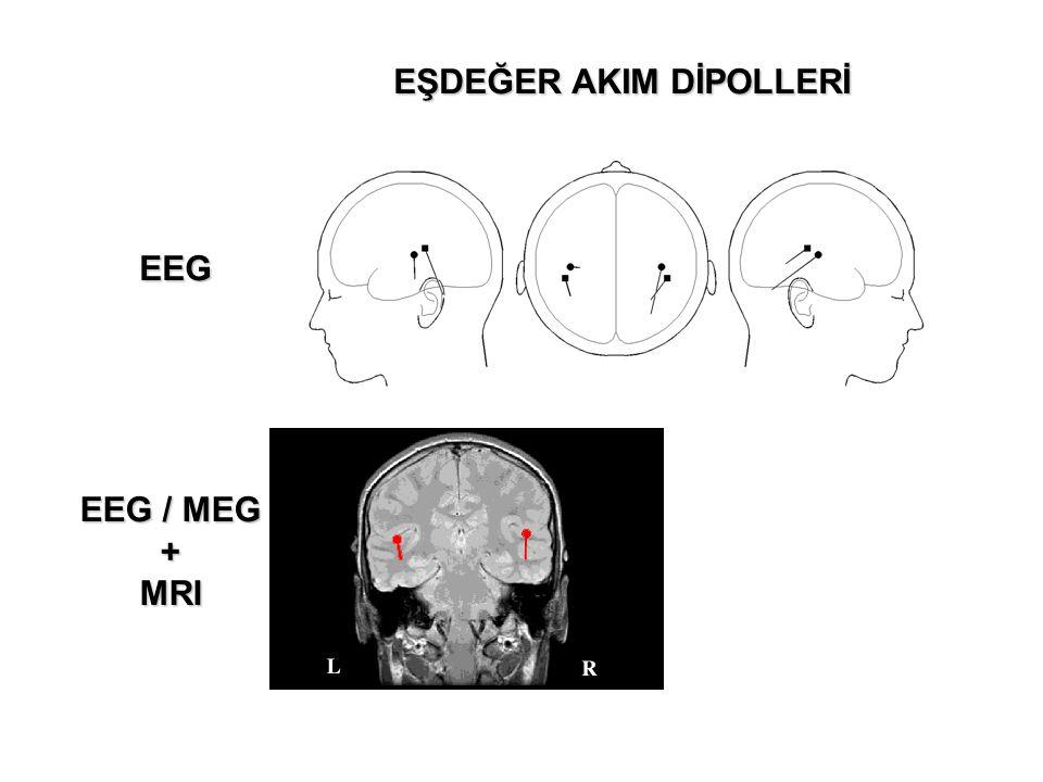 EEG EEG / MEG +MRI EŞDEĞER AKIM DİPOLLERİ