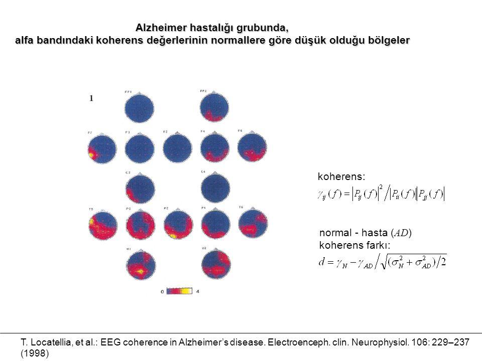 T. Locatellia, et al.: EEG coherence in Alzheimer's disease. Electroenceph. clin. Neurophysiol. 106: 229–237 (1998) Alzheimer hastalığı grubunda, alfa