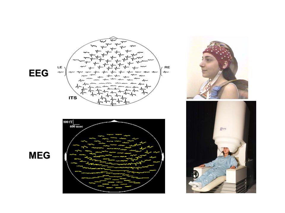 EEG MEG