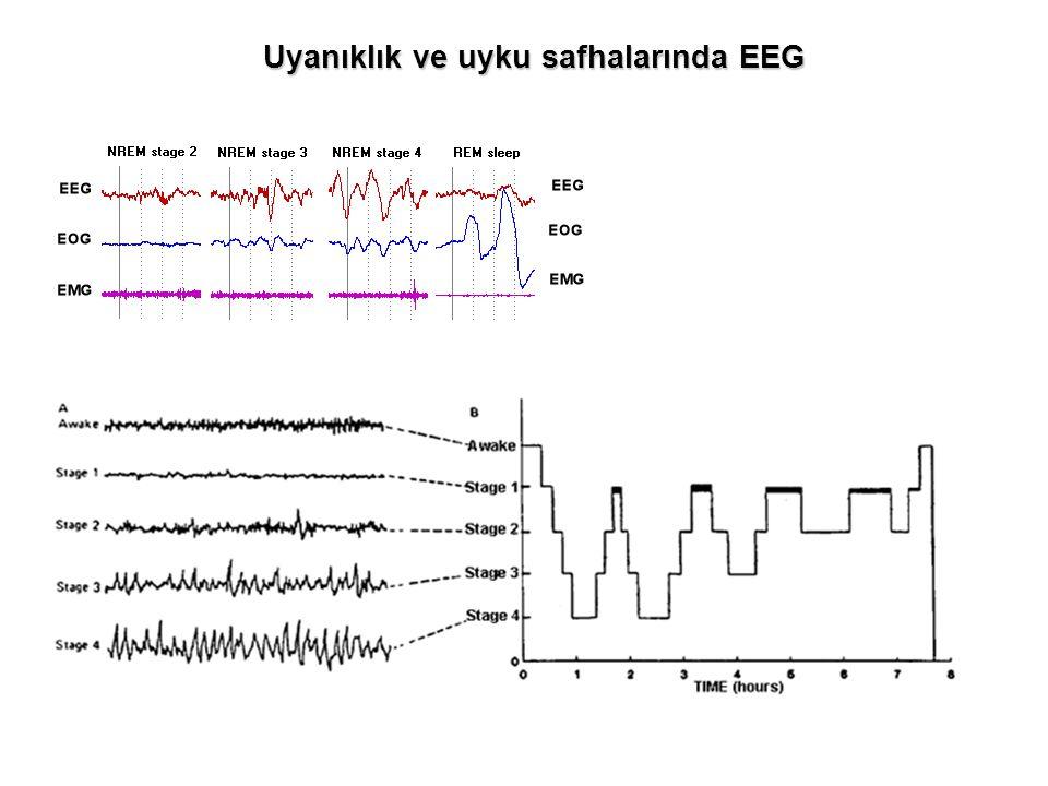Uyanıklık ve uyku safhalarında EEG