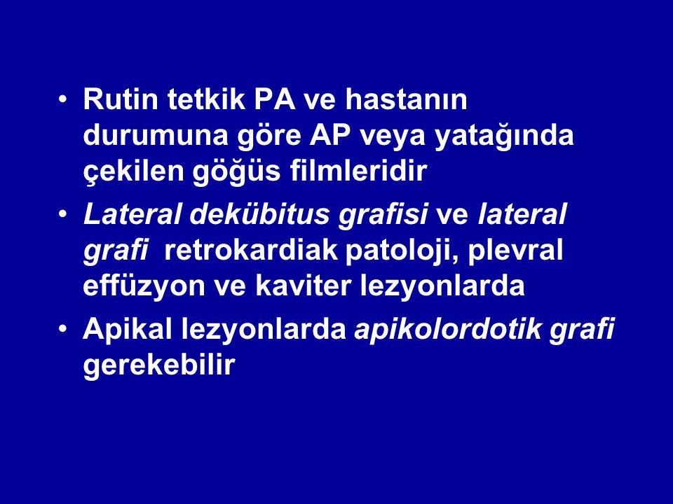 Rutin tetkik PA ve hastanın durumuna göre AP veya yatağında çekilen göğüs filmleridir Lateral dekübitus grafisi ve lateral grafi retrokardiak patoloji