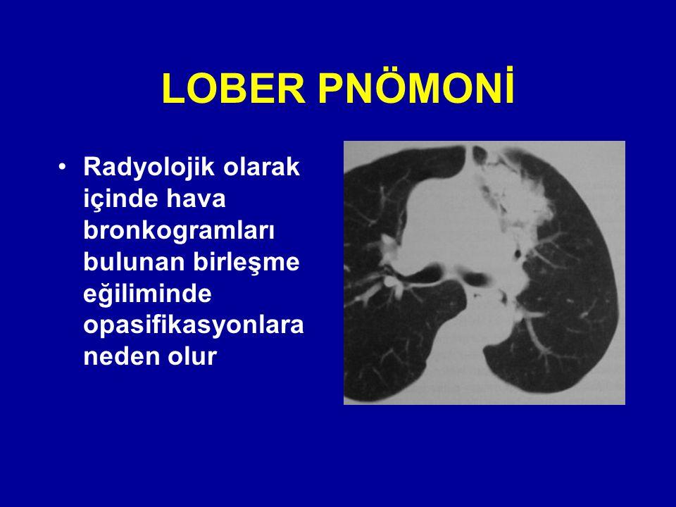 Radyolojik olarak içinde hava bronkogramları bulunan birleşme eğiliminde opasifikasyonlara neden olur
