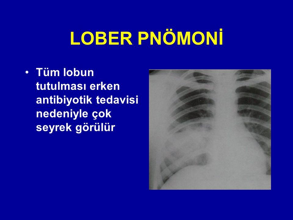 Tüm lobun tutulması erken antibiyotik tedavisi nedeniyle çok seyrek görülür LOBER PNÖMONİ