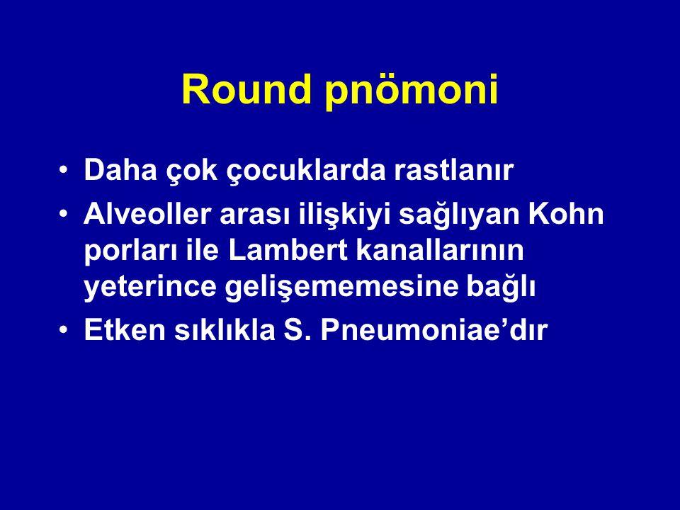 Round pnömoni Daha çok çocuklarda rastlanır Alveoller arası ilişkiyi sağlıyan Kohn porları ile Lambert kanallarının yeterince gelişememesine bağlı Etk