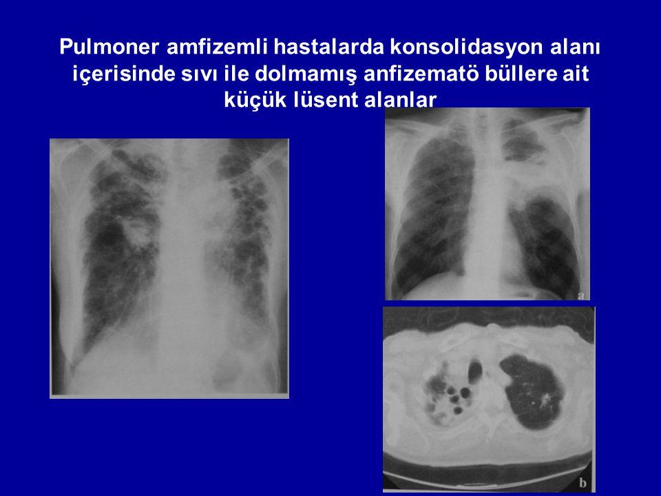 Pulmoner amfizemli hastalarda konsolidasyon alanı içerisinde sıvı ile dolmamış anfizematö büllere ait küçük lüsent alanlar