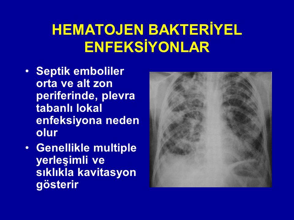 HEMATOJEN BAKTERİYEL ENFEKSİYONLAR Septik emboliler orta ve alt zon periferinde, plevra tabanlı lokal enfeksiyona neden olur Genellikle multiple yerle