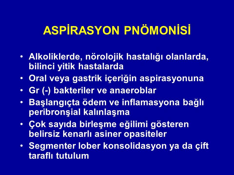 ASPİRASYON PNÖMONİSİ Alkoliklerde, nörolojik hastalığı olanlarda, bilinci yitik hastalarda Oral veya gastrik içeriğin aspirasyonuna Gr (-) bakteriler