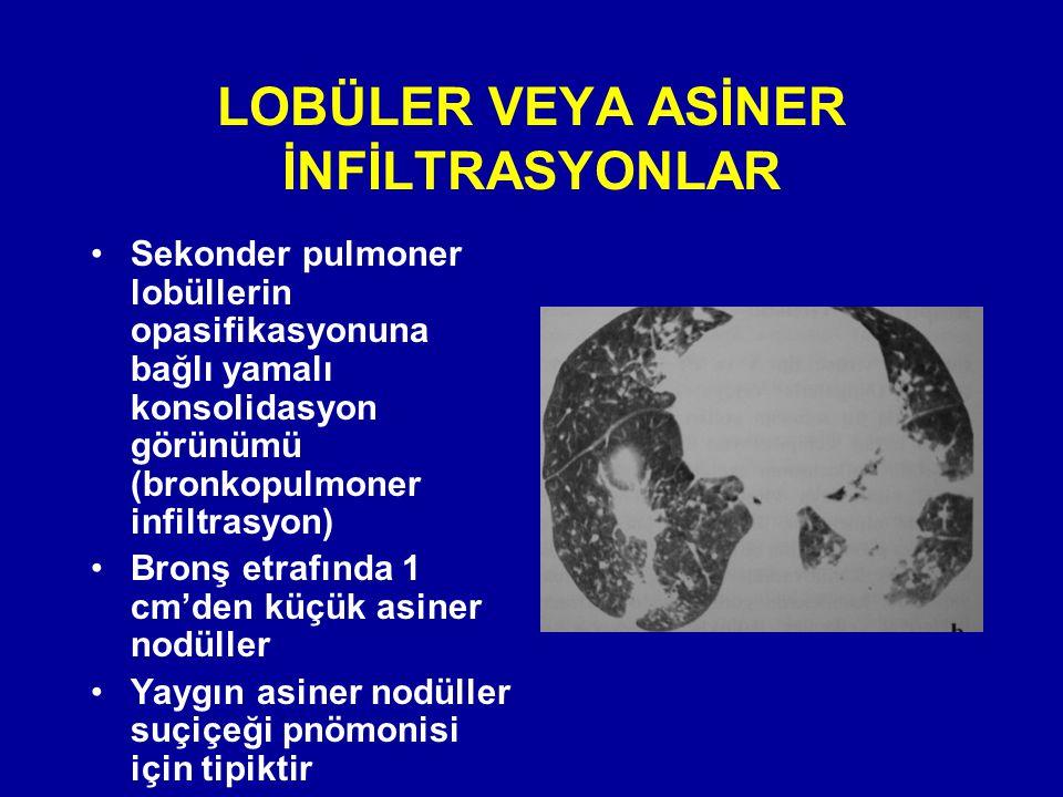 LOBÜLER VEYA ASİNER İNFİLTRASYONLAR Sekonder pulmoner lobüllerin opasifikasyonuna bağlı yamalı konsolidasyon görünümü (bronkopulmoner infiltrasyon) Br