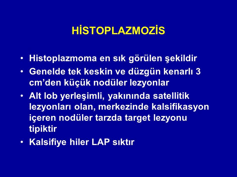 Histoplazmoma en sık görülen şekildir Genelde tek keskin ve düzgün kenarlı 3 cm'den küçük nodüler lezyonlar Alt lob yerleşimli, yakınında satellitik l