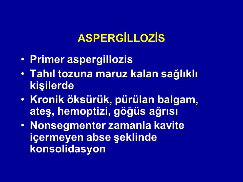 ASPERGİLLOZİS Primer aspergillozis Tahıl tozuna maruz kalan sağlıklı kişilerde Kronik öksürük, pürülan balgam, ateş, hemoptizi, göğüs ağrısı Nonsegmen