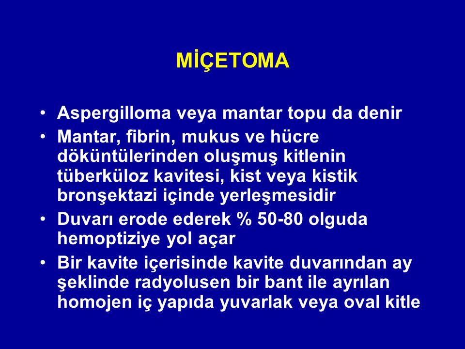 MİÇETOMA Aspergilloma veya mantar topu da denir Mantar, fibrin, mukus ve hücre döküntülerinden oluşmuş kitlenin tüberküloz kavitesi, kist veya kistik