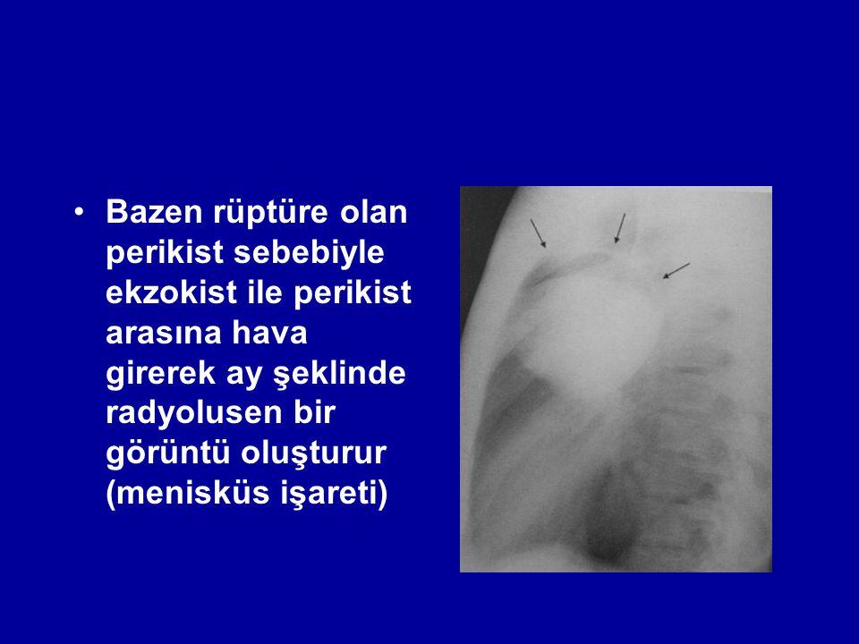 Bazen rüptüre olan perikist sebebiyle ekzokist ile perikist arasına hava girerek ay şeklinde radyolusen bir görüntü oluşturur (menisküs işareti)
