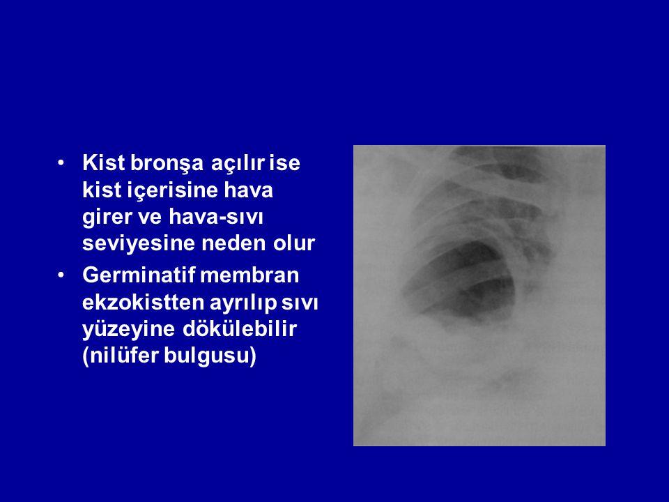 Kist bronşa açılır ise kist içerisine hava girer ve hava-sıvı seviyesine neden olur Germinatif membran ekzokistten ayrılıp sıvı yüzeyine dökülebilir (