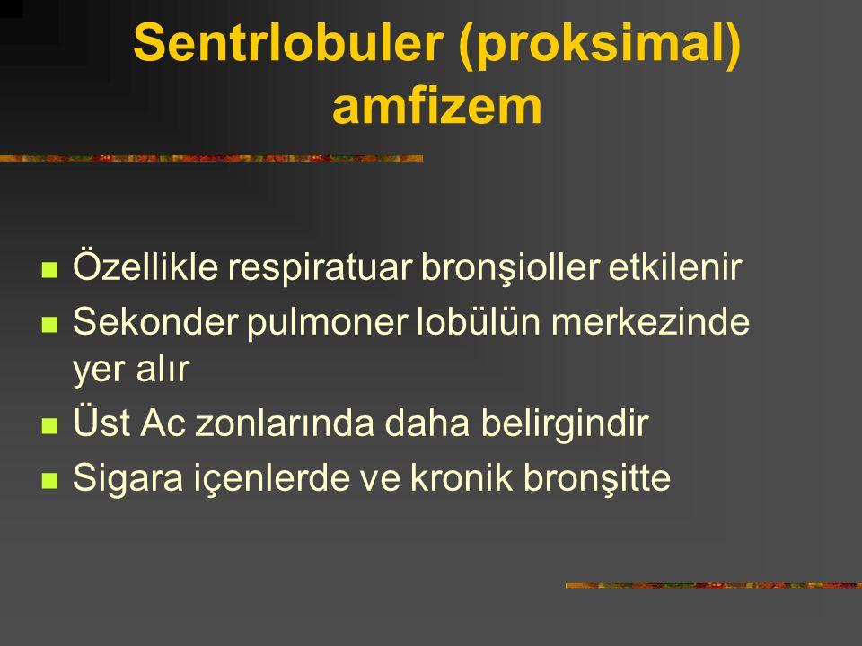 Sentrlobuler (proksimal) amfizem Özellikle respiratuar bronşioller etkilenir Sekonder pulmoner lobülün merkezinde yer alır Üst Ac zonlarında daha beli