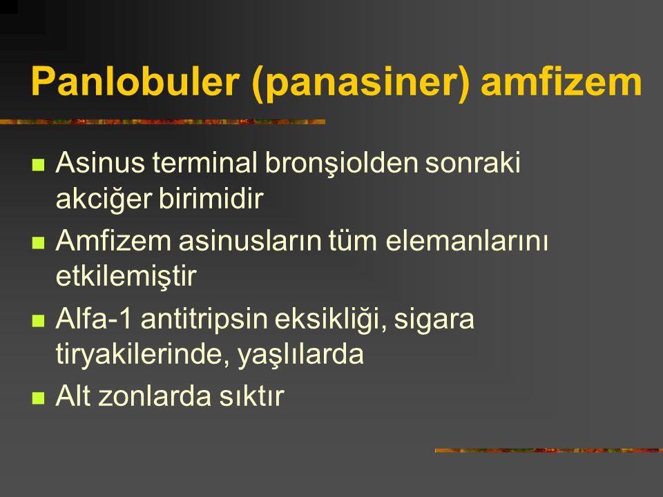 Panlobuler (panasiner) amfizem Asinus terminal bronşiolden sonraki akciğer birimidir Amfizem asinusların tüm elemanlarını etkilemiştir Alfa-1 antitrip