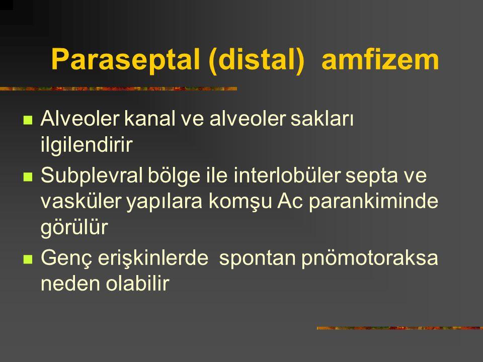 Paraseptal (distal) amfizem Alveoler kanal ve alveoler sakları ilgilendirir Subplevral bölge ile interlobüler septa ve vasküler yapılara komşu Ac para