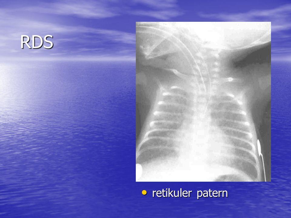 RDS retikuler patern retikuler patern