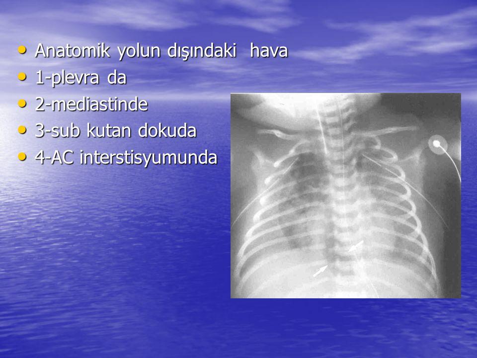 Anatomik yolun dışındaki hava Anatomik yolun dışındaki hava 1-plevra da 1-plevra da 2-mediastinde 2-mediastinde 3-sub kutan dokuda 3-sub kutan dokuda 4-AC interstisyumunda 4-AC interstisyumunda