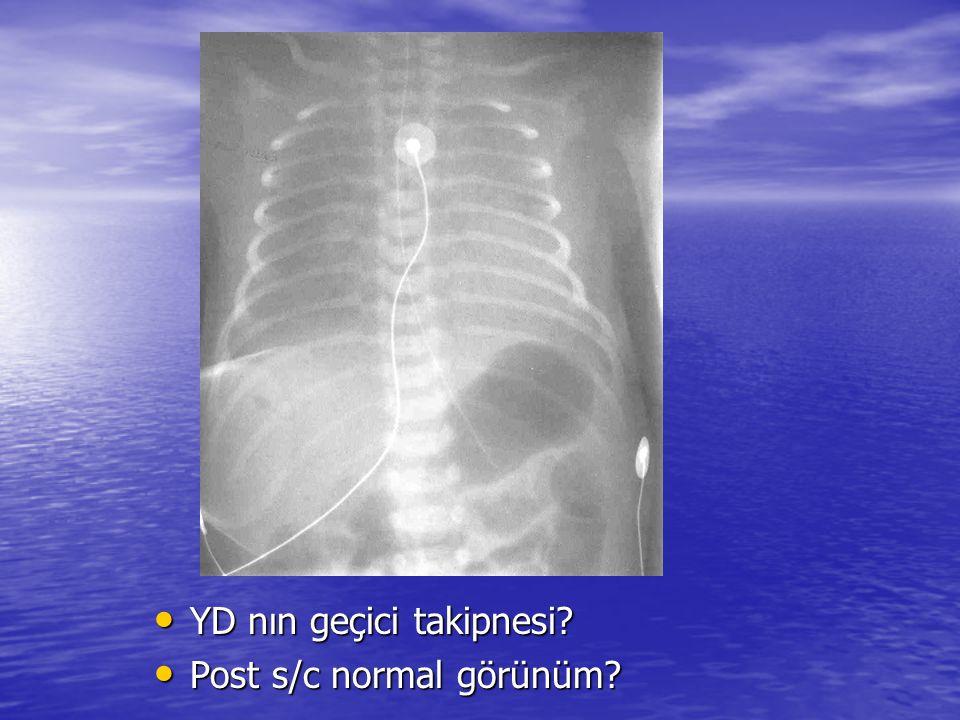 Algoritm: pozisyon pozisyon teknik teknik tıbbi materyaller tıbbi materyaller radyolojik bulgular radyolojik bulgular