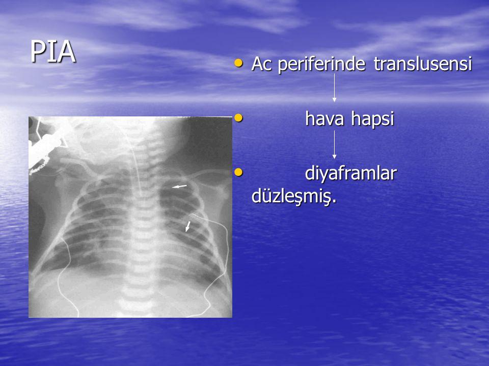 PIA Ac periferinde translusensi Ac periferinde translusensi hava hapsi hava hapsi diyaframlar düzleşmiş.