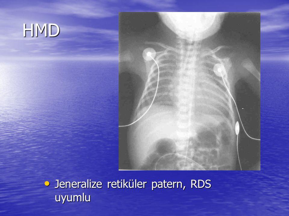 HMD Jeneralize retiküler patern, RDS uyumlu Jeneralize retiküler patern, RDS uyumlu