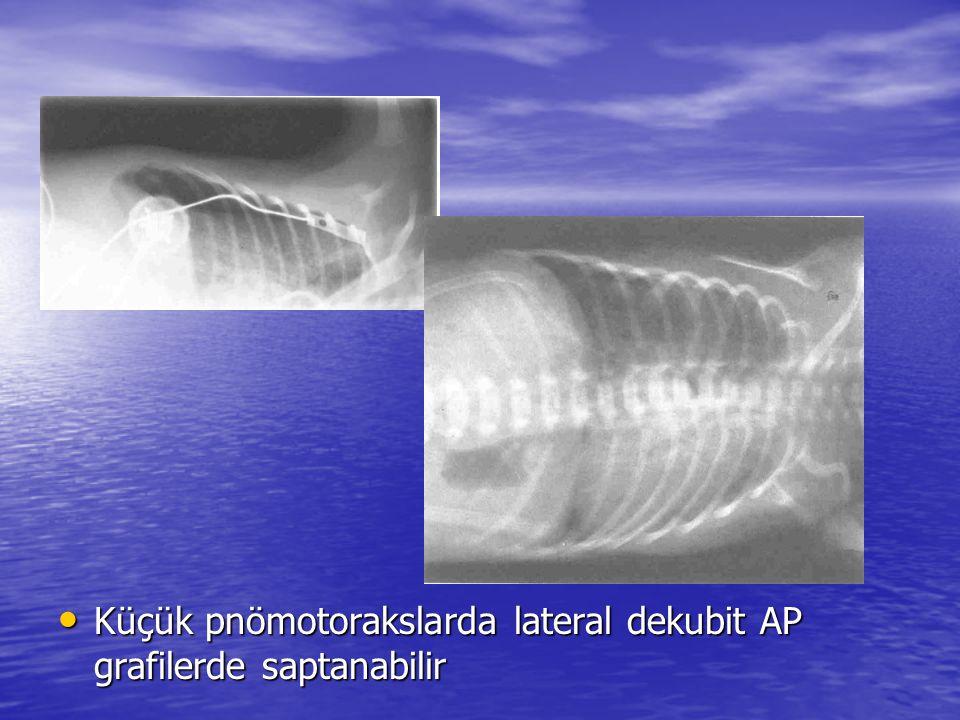 Küçük pnömotorakslarda lateral dekubit AP grafilerde saptanabilir Küçük pnömotorakslarda lateral dekubit AP grafilerde saptanabilir