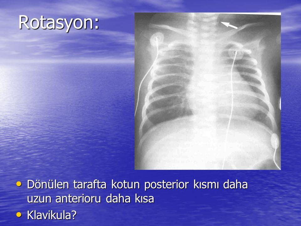 Rotasyon: Rotasyon: Dönülen tarafta kotun posterior kısmı daha uzun anterioru daha kısa Dönülen tarafta kotun posterior kısmı daha uzun anterioru daha kısa Klavikula.