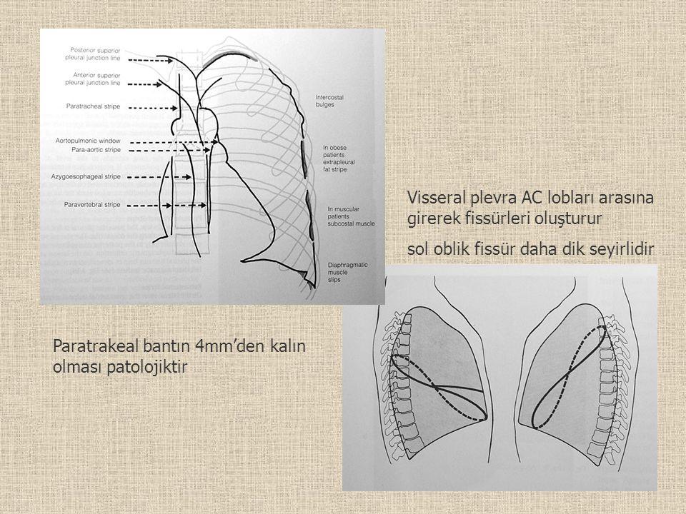 Paratrakeal bantın 4mm'den kalın olması patolojiktir Visseral plevra AC lobları arasına girerek fissürleri oluşturur sol oblik fissür daha dik seyirli