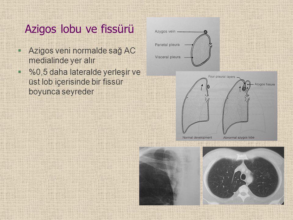 Azigos lobu ve fissürü §Azigos veni normalde sağ AC medialinde yer alır §%0,5 daha lateralde yerleşir ve üst lob içerisinde bir fissür boyunca seyrede