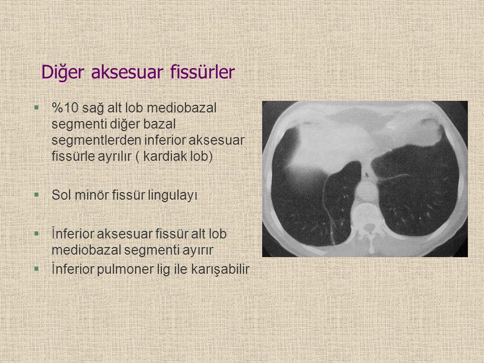 §%10 sağ alt lob mediobazal segmenti diğer bazal segmentlerden inferior aksesuar fissürle ayrılır ( kardiak lob) §Sol minör fissür lingulayı §İnferior aksesuar fissür alt lob mediobazal segmenti ayırır §İnferior pulmoner lig ile karışabilir Diğer aksesuar fissürler