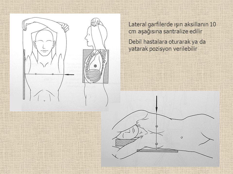 Lateral garfilerde ışın aksillanın 10 cm aşağısına santralize edilir Debil hastalara oturarak ya da yatarak pozisyon verilebilir