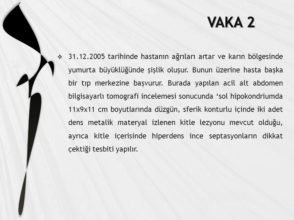 VAKA 2  31.12.2005 tarihinde hastanın ağrıları artar ve karın bölgesinde yumurta büyüklüğünde şişlik oluşur.