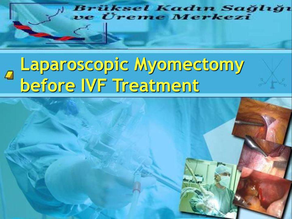 Laparoscopic Myomectomy before IVF Treatment