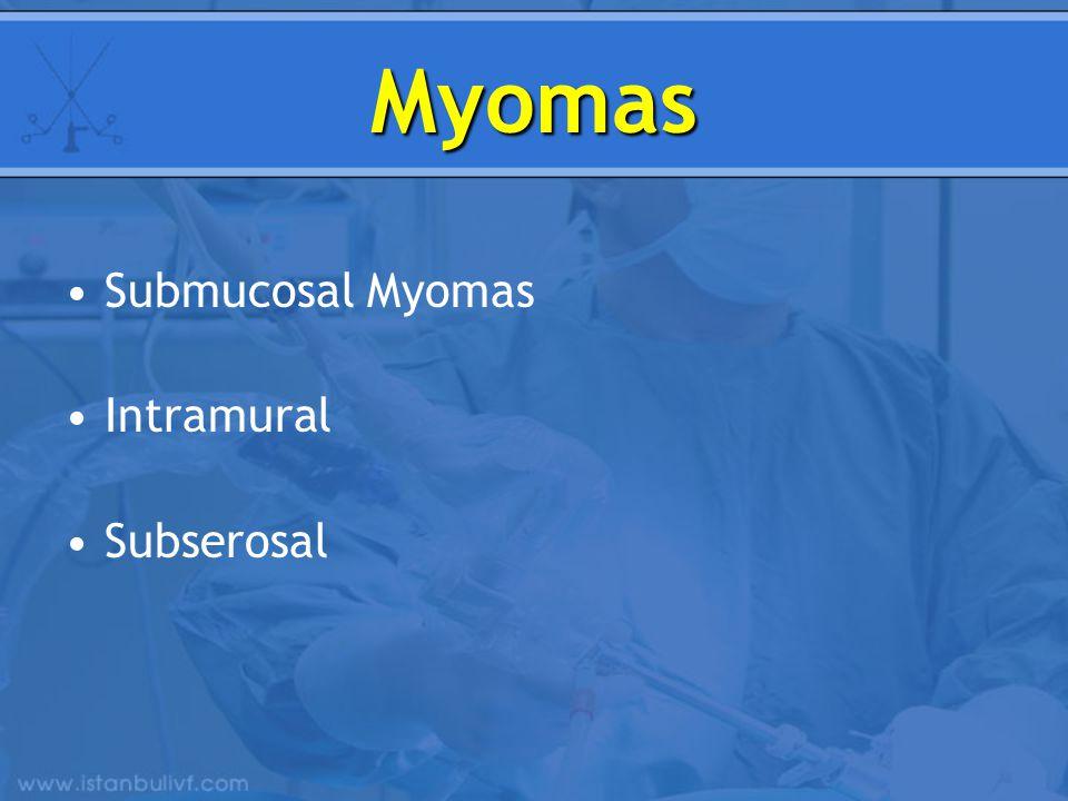 Myomas Submucosal Myomas Intramural Subserosal