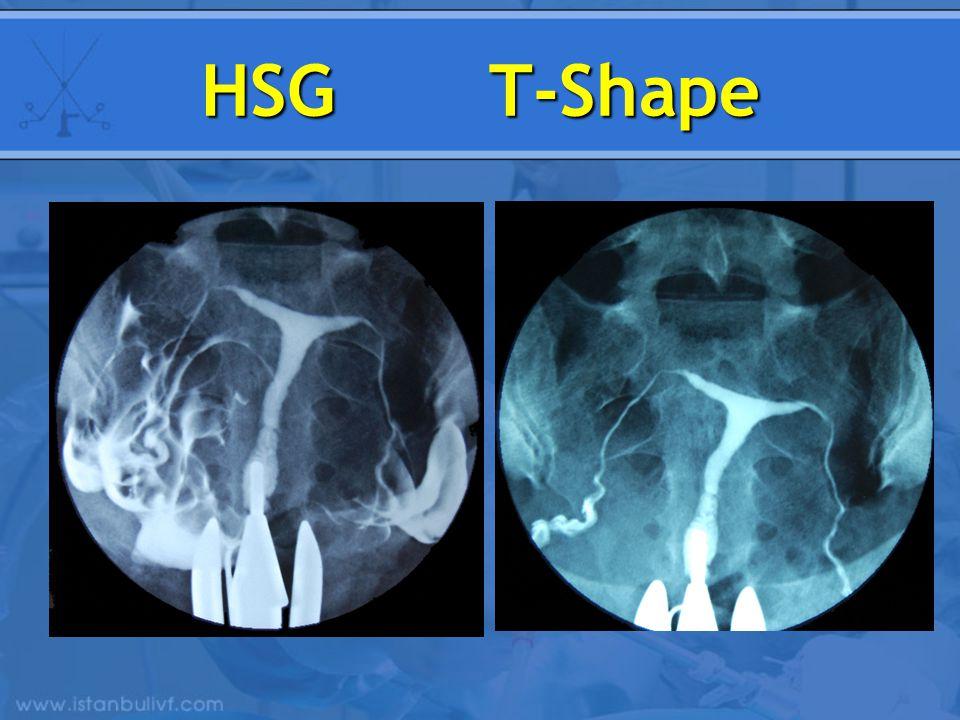 HSG T-Shape