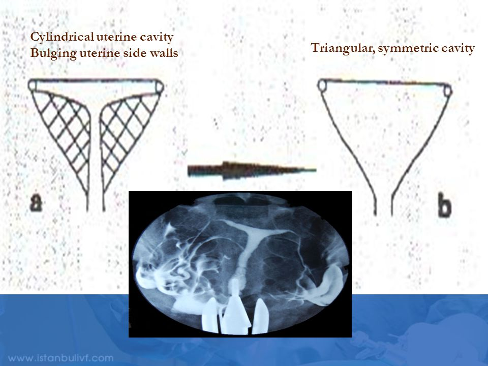 Cylindrical uterine cavity Bulging uterine side walls Triangular, symmetric cavity