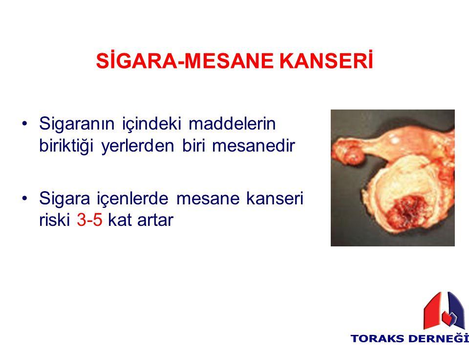 SİGARA-MESANE KANSERİ Sigaranın içindeki maddelerin biriktiği yerlerden biri mesanedir Sigara içenlerde mesane kanseri riski 3-5 kat artar