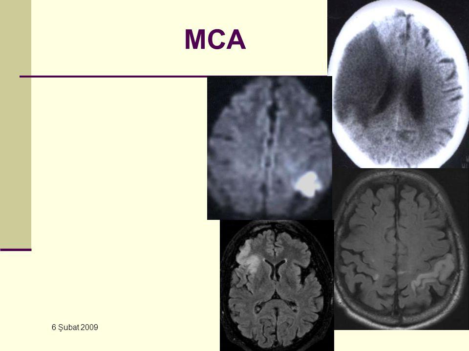 6 Şubat 2009 YBU – Kursu MCA