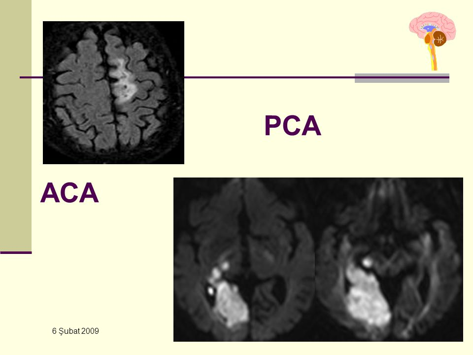 6 Şubat 2009 YBU – Kursu ACA PCA