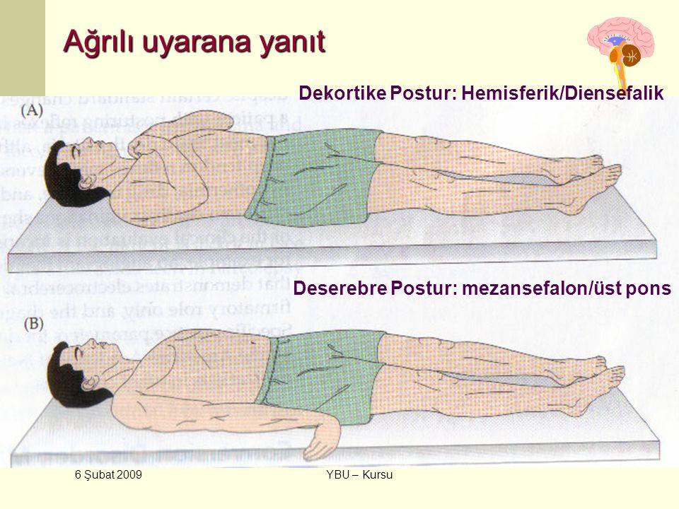 6 Şubat 2009 YBU – Kursu Ağrılı uyarana yanıt Dekortike Postur: Hemisferik/Diensefalik Deserebre Postur: mezansefalon/üst pons