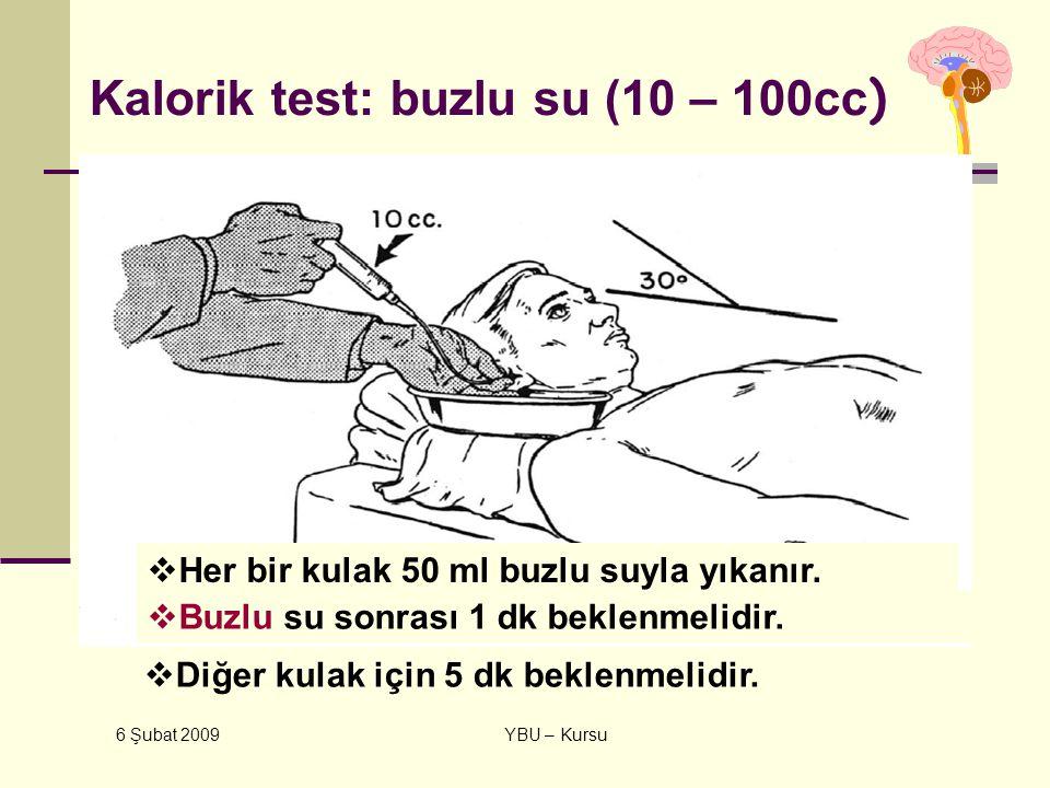 6 Şubat 2009 YBU – Kursu Kalorik test: buzlu su (10 – 100cc )  Her bir kulak 50 ml buzlu suyla yıkanır.  Buzlu su sonrası 1 dk beklenmelidir.  Diğe