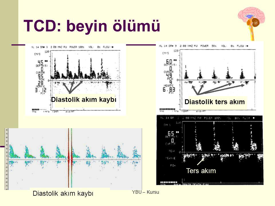 6 Şubat 2009 YBU – Kursu TCD: beyin ölümü Diastolik akım kaybı Diastolik ters akım Ters akım Diastolik akım kaybı