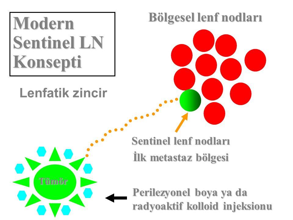 Lenfatik zincir Bölgesel lenf nodları Sentinel lenf nodları İlk metastaz bölgesi Perilezyonel boya ya da radyoaktif kolloid injeksionu Modern Sentinel LN Konsepti Tümör